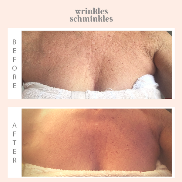 InfuseFAST Decolletage Bicellulose Sheet Mask - single mask | Wrinkles Schminkles