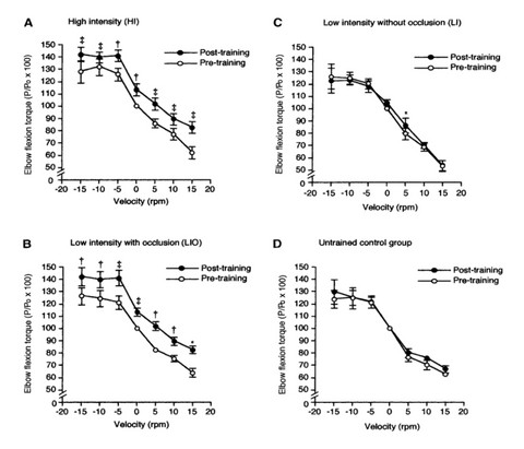 Takarada et. al. published a paper in the Journal of Applied Physiology in 2000 (see Figure 1 below), demonstrating that the combination of light loads (30% of 1RM) plus BFR (panel B in Fig 1) could produce the same increase in strength and muscle size as standard high load training (panel A in Fig 1).