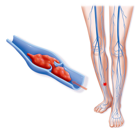 Compression Socks for veins Thrombosis