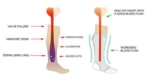What are compression socks used for?