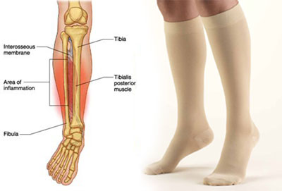 compression socks for shin-splints