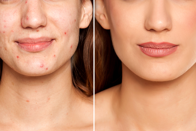 Are You Making Your Acne and Oily Skin Worse?