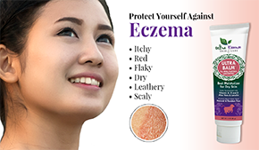 Eczema | Ultra Essence natural skin care products, with anti aging benefits, are specially formulated to moisturize dry skin for radiant milky-soft skin.