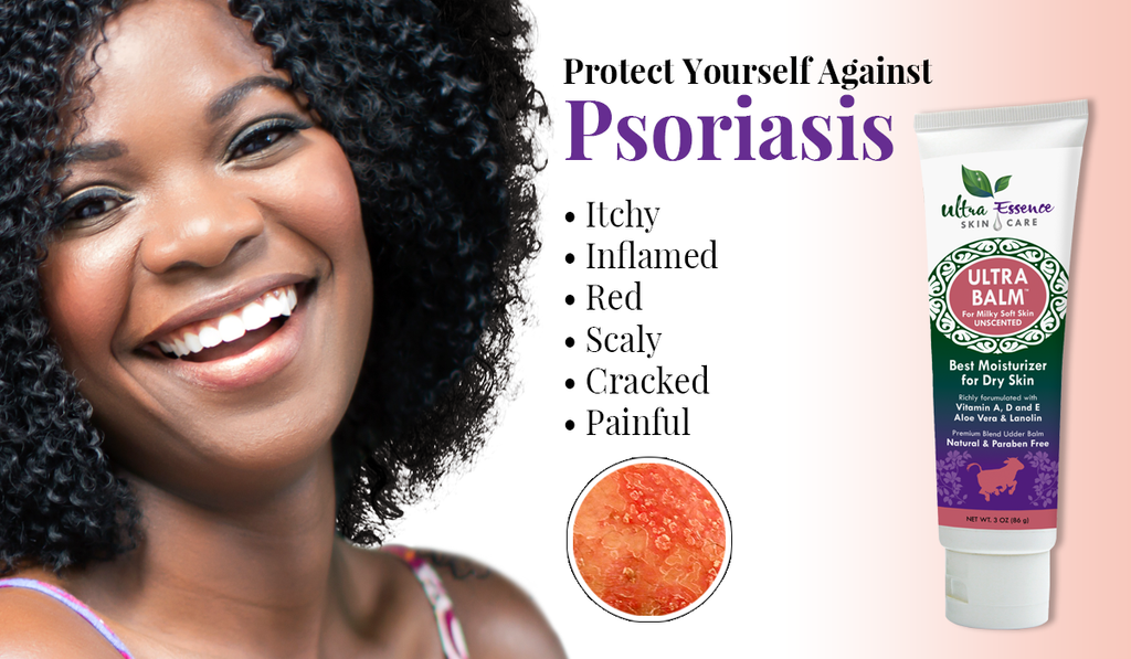 Psoriasis | Ultra Essence natural skin care products, with anti aging benefits, are specially formulated to moisturize dry skin for radiant milky-soft skin.