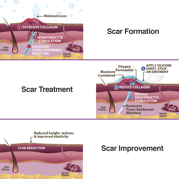 Silicone Scar Remover Therapy Patch