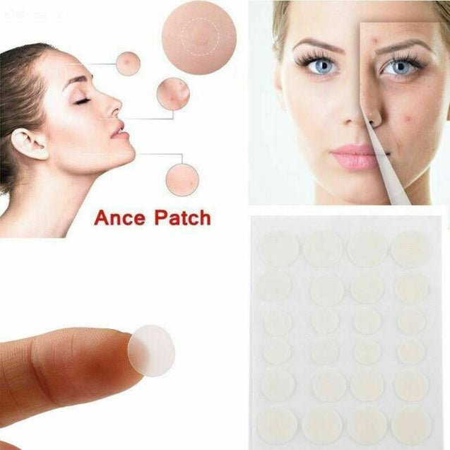 Acne Patch (24 Pieces)