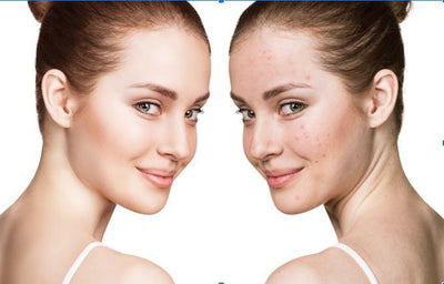 Causes of Acne and the Best Solutions for Acne Scarred Skin.