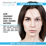 GloxiniaLife by Dr. Calle Clear Acne Control Serum-Acne Treatment, Fights Blackheads & Acne Bacteria-Acne Solutions-Gloxinialife