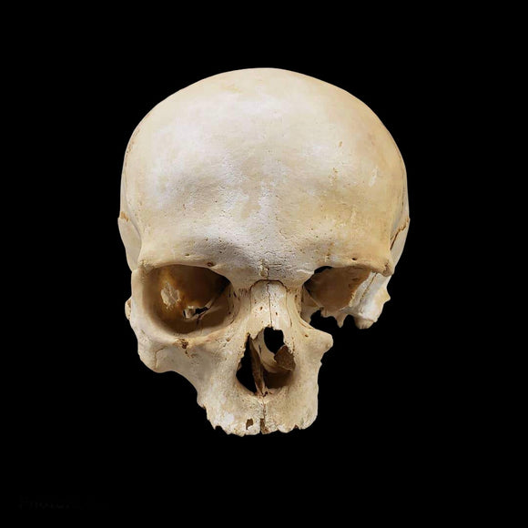 Antique Human Osteology - Female