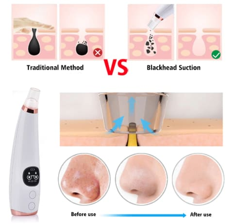 Pore Vacuum Pro vs. Traditional Cleansing: Pore Cleaner, Blackhead Removal Tool, Manage Cystic Acne