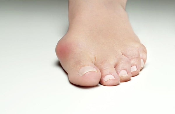 causes of bunions 5 reasons you have them