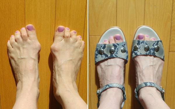happy customer review for calla shoes bunions and sandals