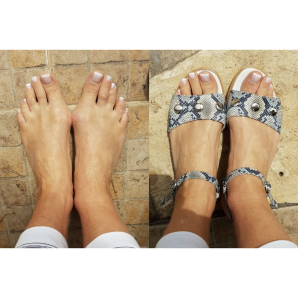 feet with bunions wearing sandals