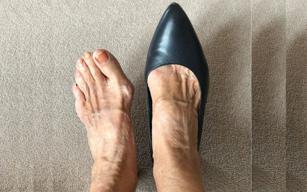 customer review of ava kitten heel for bunions by calla shoes