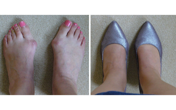 kitten heels for bunions by calla happy customer review