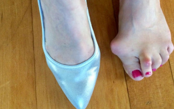 heels for bunions customer review calla shoes for bunions
