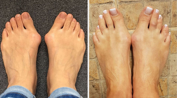 curing bunions by jennifer bailey calla shoes
