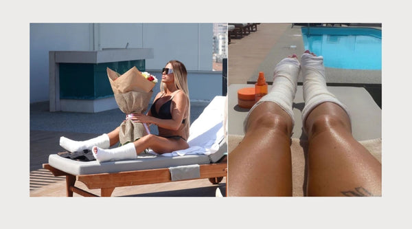 katie price broken feet in cast
