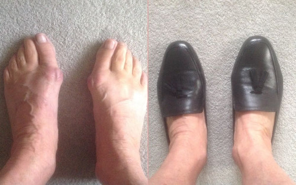 feet in and out of shoes for bunions