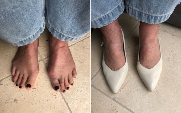 feet with bunions with and without the shoes on