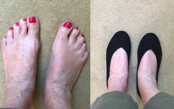 review of black shoes for bunions