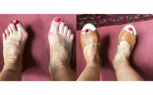 review of calla shoes for bunions