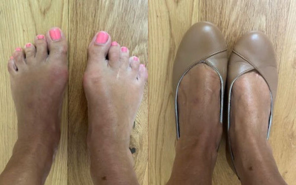 feet with bunions and feet in calla shoes