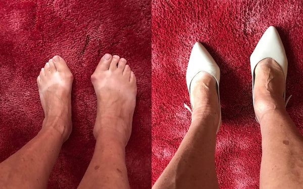 woman with bunions wears cream shoes