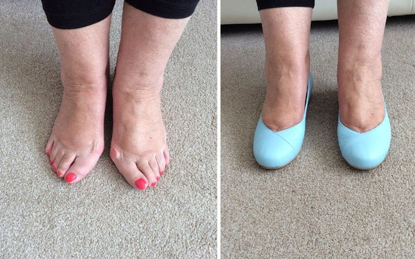 review of calla customer wearing blue flats for her bunions