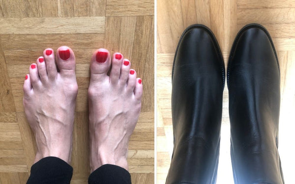 feet with bunions side by side with boots