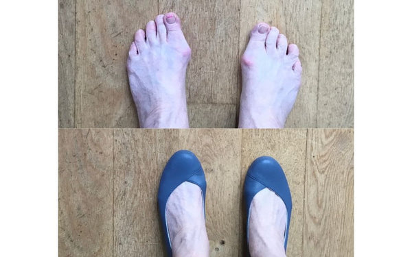 photo review of calla shoes for bunions