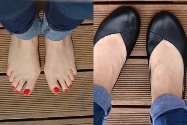 feet with bunions wearing black flat shoes