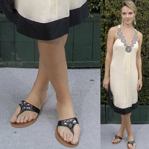 celebrities with bunions beau garret feet
