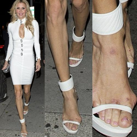 celebrities with bunions brandi glanville feet