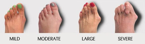 severity of bunions on feet from mild to severe by calla shoes