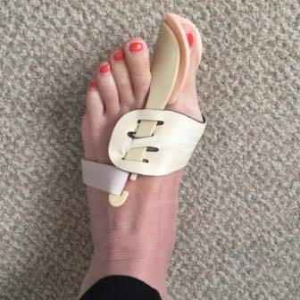 bunion splints