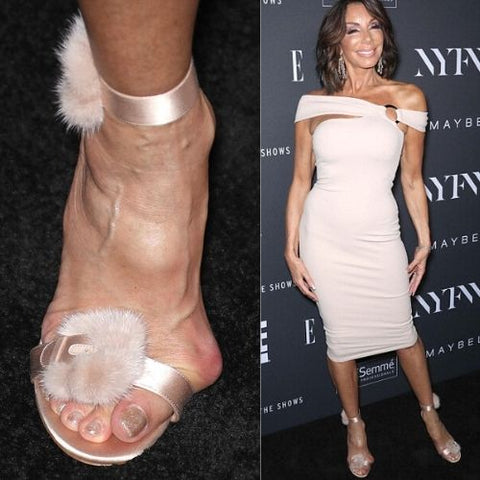 celebrities with bunions danielle staub feet calla shoes