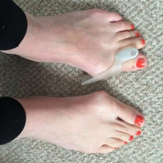 gel toe separators and bunion protectors