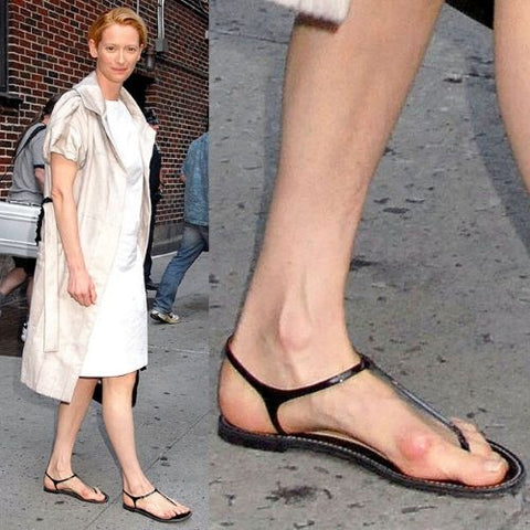 celebrities with bunions tilda swinton