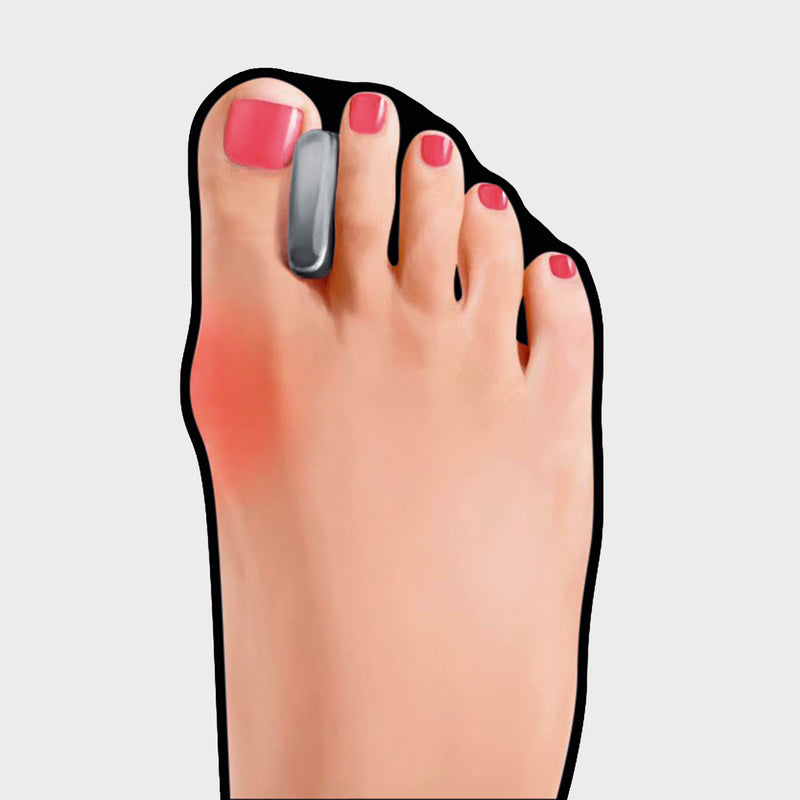 foot with go bunion toe separator