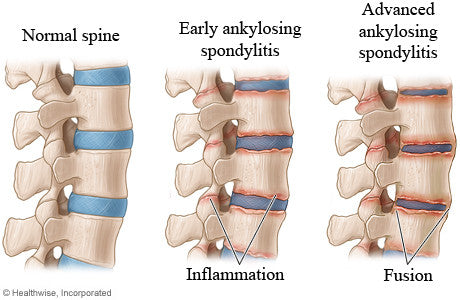My Ankylosing Spondylitis (AS) in pregnancy was mistaken for Pelvic Girdle Pain (PGP)