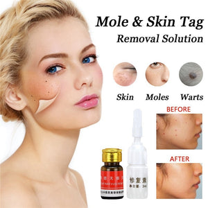 Face Wart Tag Freckle Removal Cream Painless Mole Skin