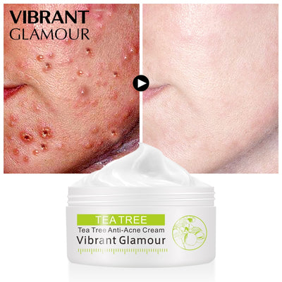 VIBRANTGLAM™ Tea Tree Anti-Acne Cream
