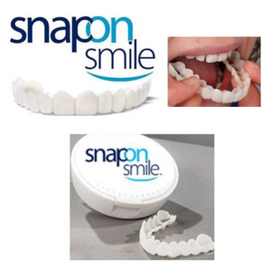 Snapon smile Simulated braces/veneers