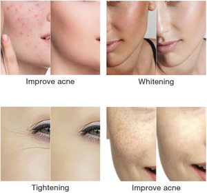 Anti-aging Light Therapy Beauty Face Screen
