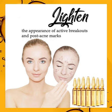 Load image into Gallery viewer, 【Buy 1 Get 1 Free】Anti-Dark Spot Ampoule