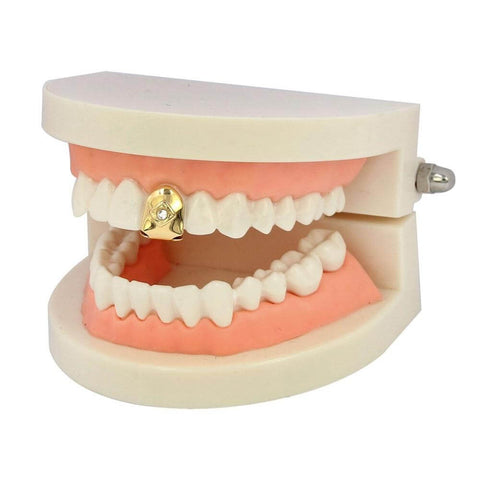Grillz <br> Mono Dentaire