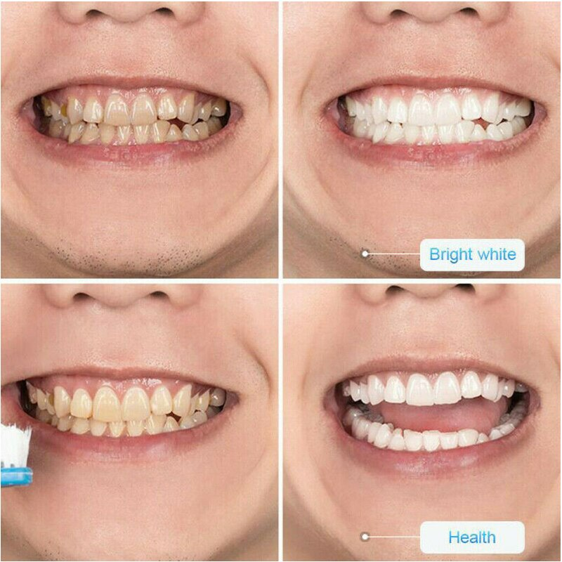 InstaWhite™: Intensive Teeth Whitening Toothpaste