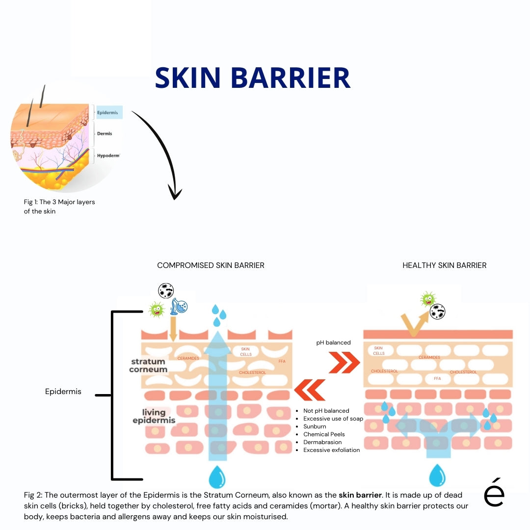 What is the Skin Barrier? | ellé derm