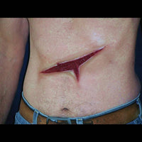 large slash wound appliance